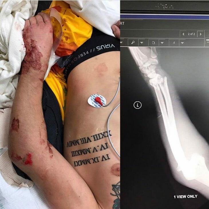 Ken Roczen Injury Update